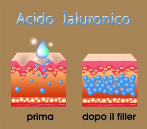 acido jaluronico