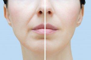 acido ialuronico: prima e dopo