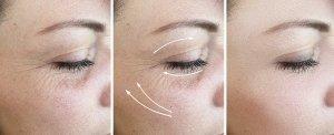 Prima e dopo il trattamento con Tossina Botulinica