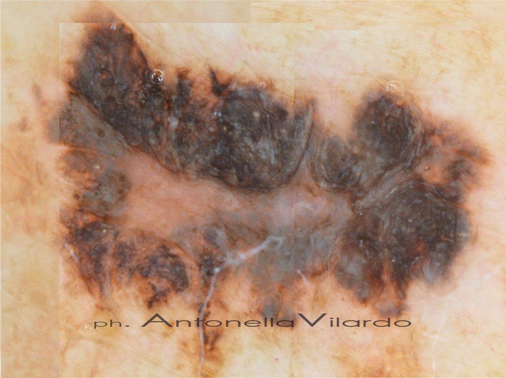 caso B: EPILUMINESCENZA di Melanoma tipo SSM, spessore 0,7 mm