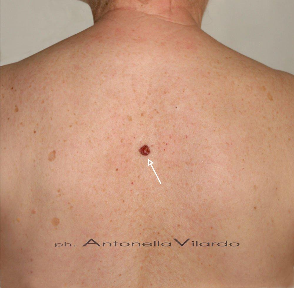 caso D: Melanoma nodulare