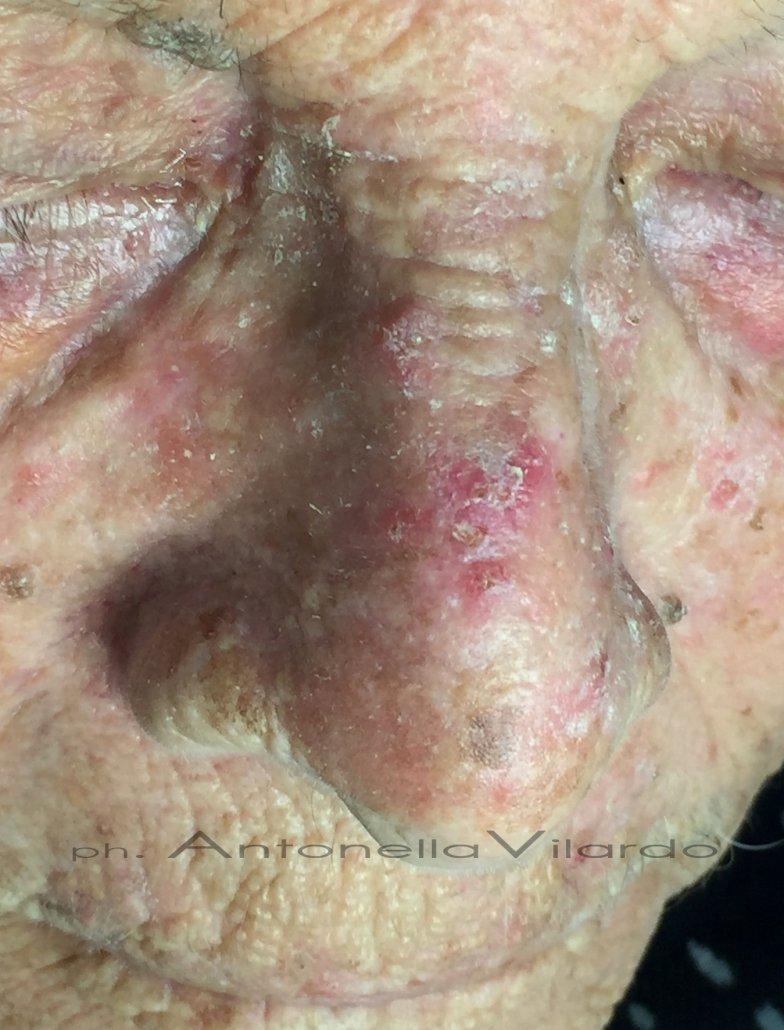 Nel fotodanneggiamento grave carcinomi spinocellulari e basocellulari multipli.